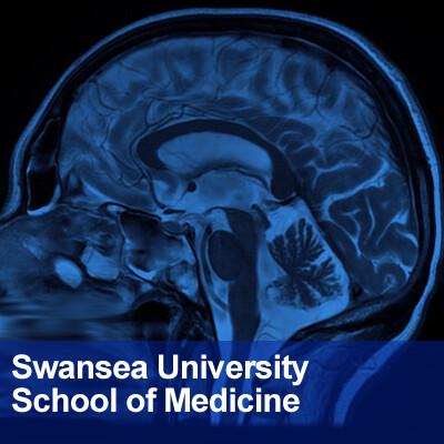 School of Medicine, Swansea University: Neuroscience