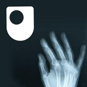 Rheumatoid arthritis - a long term condition - for iPod/iPhone