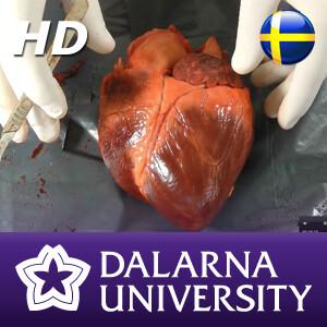 Dissektion (HD)